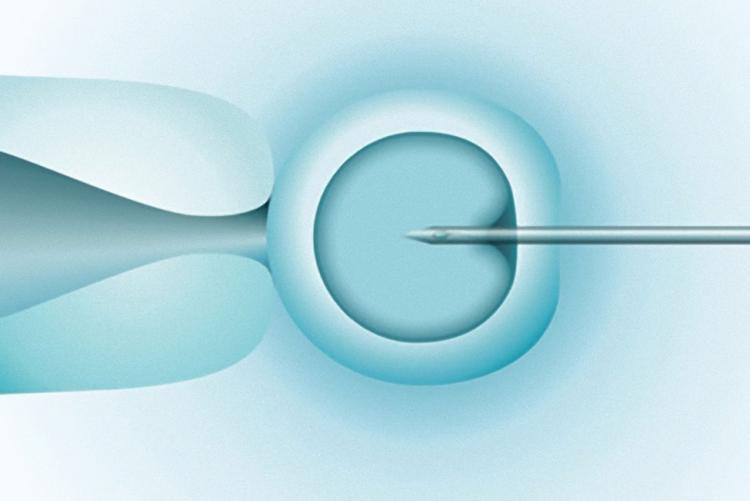 Fertilização in Vitro por ICSI